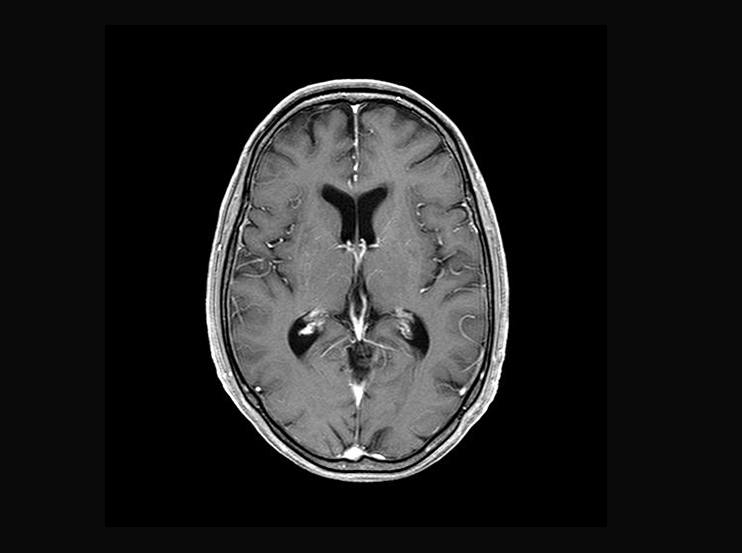 脳画像(造影)