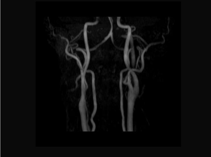 頚部血管画像