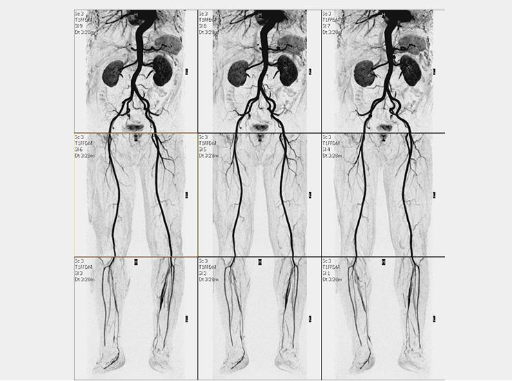 下肢MRA(造影)